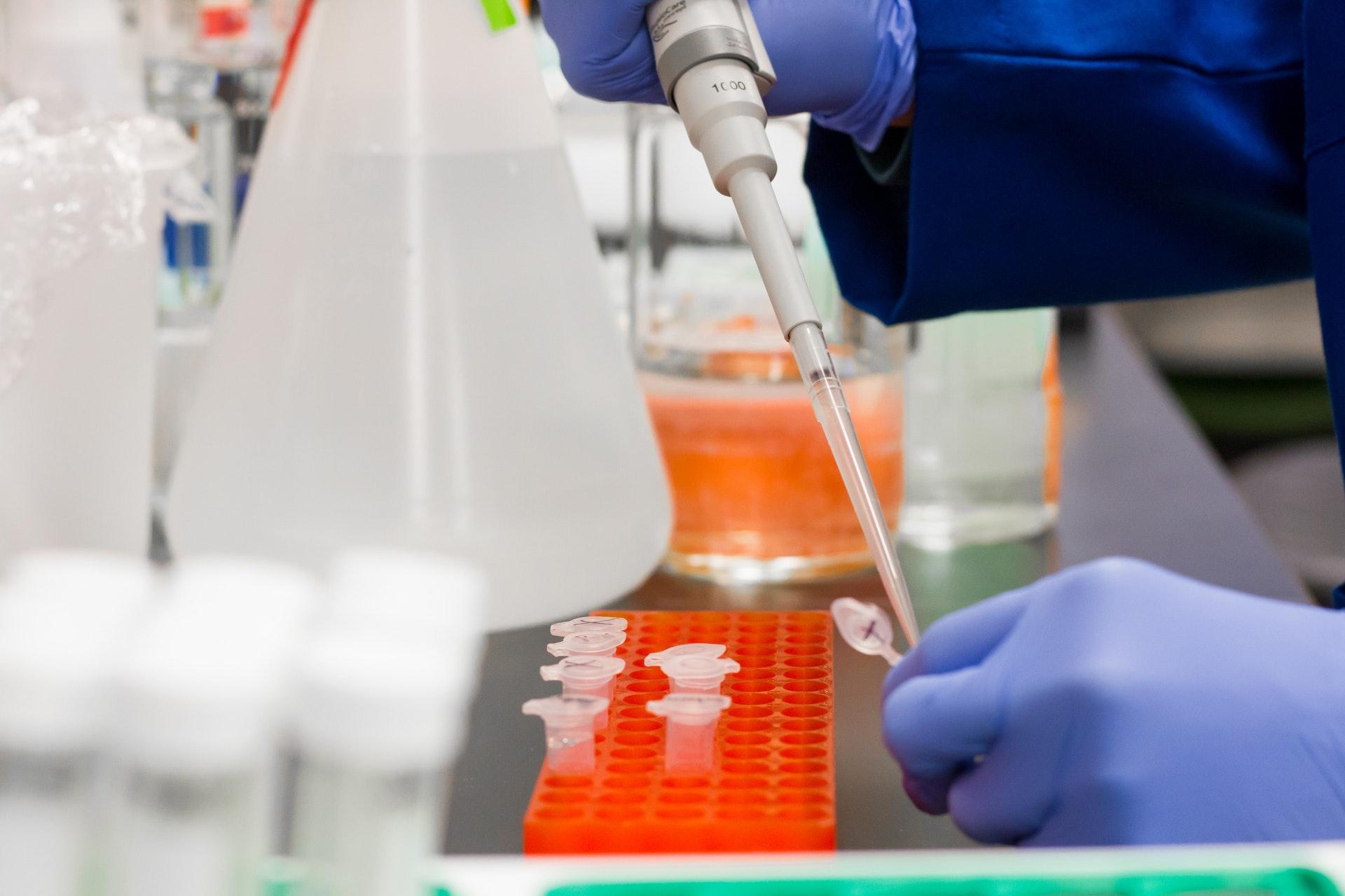 PCR-Test